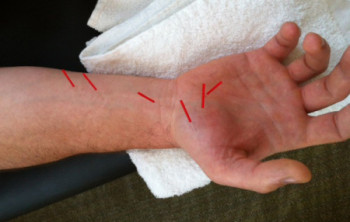 Dry Needling Arm